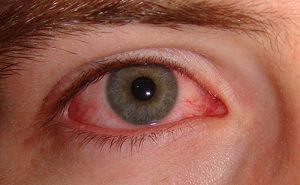 lentes de contacto